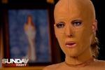 Il coraggio di Dana, toglie la maschera a due anni dalle ustioni che la sfigurarono