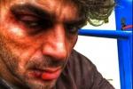 Luca Argentero con labbra spaccate e occhi neri, fan allarmati ma è solo un... trucco. Le foto
