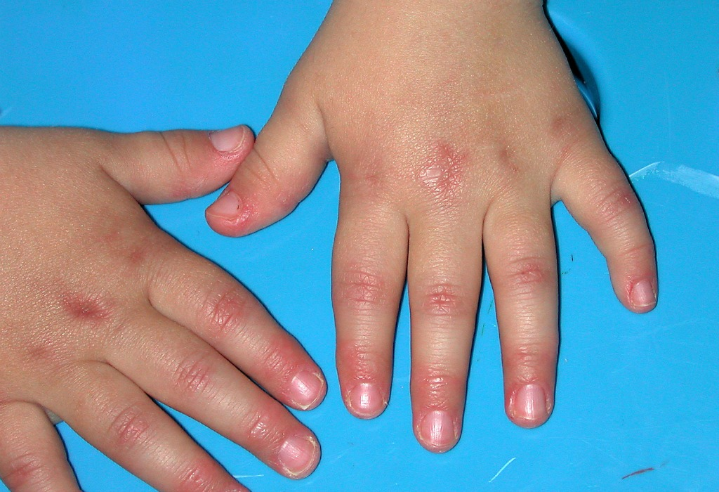 Artrite idiopatica giovanile sistemica. I due anticorpi che fermano la malattia