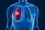 Tumore ai polmoni nelle donne: nel 2015 ucciderà più di quello al seno