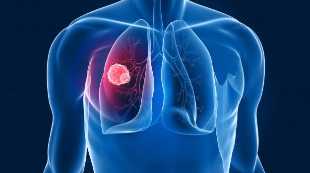 cancro, polmone, Sicilia, Società