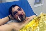 Parla il clochard aggredito a Palermo: «Ho visto la morte, è stato un incubo»