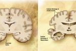 """Alzheimer, """"identikit"""" della proteina che causa la malattia"""