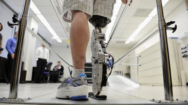 gambe bioniche, volontari, Sicilia, Società