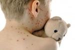 Vaccini, in Sicilia crollano quelli contro il morbillo