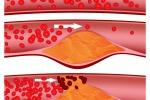 In arrivo super farmaco contro il colesterolo: lo abbassa fino al 65 per cento
