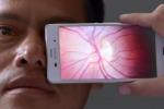 Una app per le diagnosi: lo smartphone si trasforma in oculista