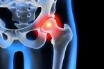 Biomateriale rigenera le ossa fragili degli anziani