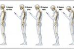 Il mal di schiena da smartphone esiste: stare curvi sullo schermo equivale a portare 27 chili sul collo