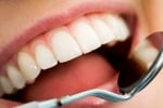 Dalle bevande ai gelati, tutte le mosse per proteggere i denti in estate