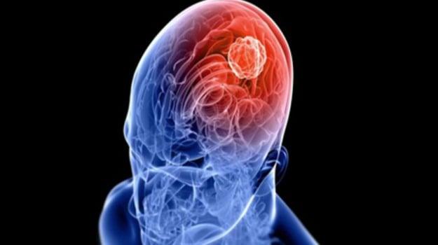 crisi epilettiche, epilessia, malattia, medicina, pacemaker, Sicilia, Vita