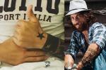 """Dopo l'aggressione, Brumotti su Instagram: """"Operazione riuscita"""" - Foto"""