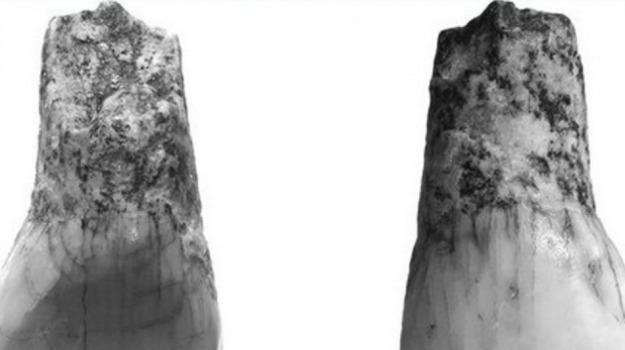 dente, ritrovamento, Sicilia, Società