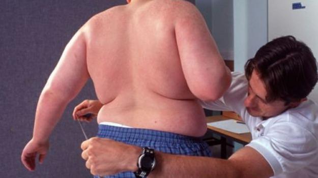 malattia cronica, obesità, Sicilia, Società
