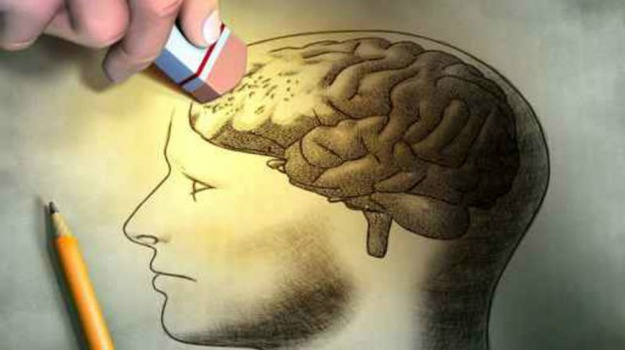 cervello, morbo di alzheimer, Sicilia, Vita