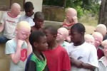 Orrore in Burundi, rapita e uccisa bambina albina di 5 anni