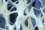 In grado di rigenerarsi e stampato in 3D: nasce l'osso bionico