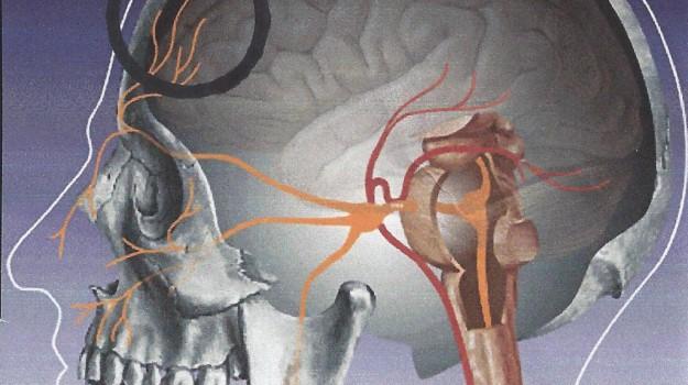 Nevralgia, operazione, tecnica, trigemino, Sicilia, Cronache della Salute