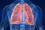 Il tumore ai polmoni è il cancro più letale: 1,6 milioni di morti all'anno