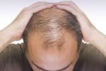 Curare la calvizie ora si può: ricercatori italiani scoprono terapia che fa ricrescere i capelli