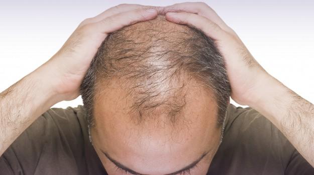 calvizie, ricrescita capelli, Sicilia, Società