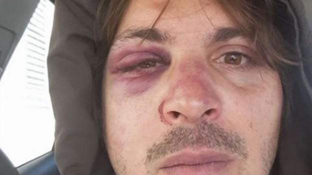 consigliere, consigliere picchiato palermo, incidente, quinta circoscrizione, Fabrizio Ferrandelli, Giovanni Tarantino, Palermo, Cronaca