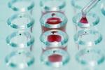Primo passo sul test del sangue che consente una diagnosi precoce del cancro