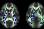 I fasci di sostanza bianca che presentano microalterazioni, evidenziate in blu e rosso (fonte: Journal: Psychiatry Research Neuroimaging, Elsevier)
