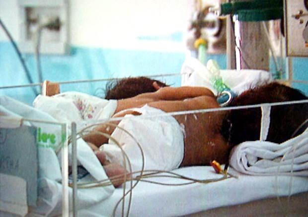 Sala Parto Ospedale Papa Giovanni Xxiii Bergamo : Nate due gemelline siamesi all ospedale bergamo giornale di sicilia