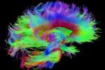 Apre il più grande laboratorio virtuale sul cervello