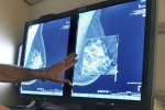 Tumore seno,80% pazienti è vivo a 10 anni ma poca conoscenza