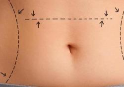 La diastasi dei muscoli accompagnata dall'ernia ombelicale