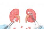 Tumore rene, con immunoncologia 39% pazienti è vivo a 3 anni