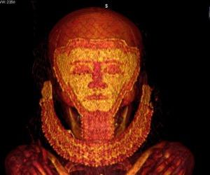 Scoperti i tumori più antichi, risalgono all'epoca dei faraoni
