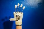 A Roma il primo intervento di mano bionica su una donna italiana