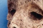 Il virus dell'epatite B in una mummia del '500