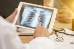 Tubercolosi, 2 mln i ragazzi colpiti ogni anno nel mondo