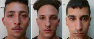 Rapinavano giovani per strada a Palermo, vittime li riconoscono: arrestati - Nomi e Foto