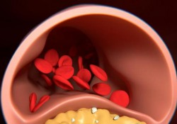 Che cos'è la tac coronarica