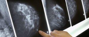 Tumore al seno, nuovo strumento di screening per anticipare la diagnosi