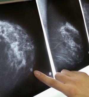 Tumore al seno, scoperta nuova arma per controllare le sue cellule staminali