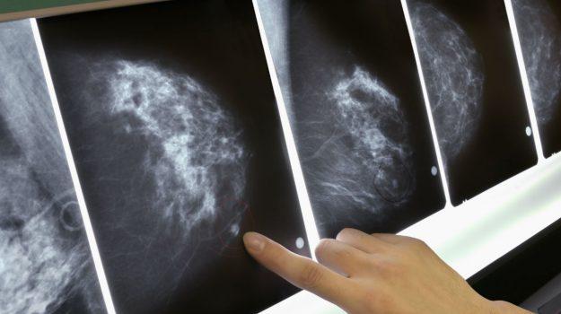 tumore al seno, Sicilia, Società