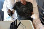 Mano bionica per ironman Zanda, è ultima generazione protesi