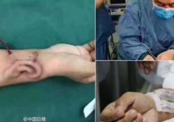 Pioneristico trapianto eseguito dal dottor Guo Shuzhong: l'uomo aveva riportato ferite alla testa in un incidente stradale