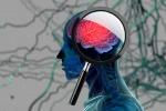 La progressione dell'Alzheimer dipende anche dalle polveri sottili