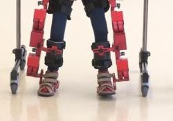 Aiuta a camminare i bambini malati di atrofia muscolare