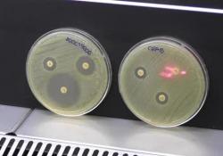 """Dati ancora negativi per l'Italia riguardo le resistenze dei batteri a diversi tipi di antibiotici. Quadro negativo anche per i farmaci """"salva vita"""""""