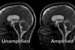 Il cervello umano «batte» come il cuore: il movimento ripreso in video per la prima volta
