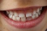 Denti in riga con mascherine anche per chi soffre di gengive