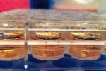 Mini cervelli in provetta (fonte: Case Western Reserve School of Medicine)